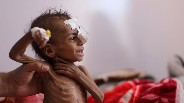 الامم المتحدة تحذر من مجاعة مدمرة في غضون أشهر قليلة في اليمن